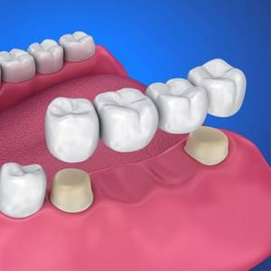 Dentures And Bridges Image 1